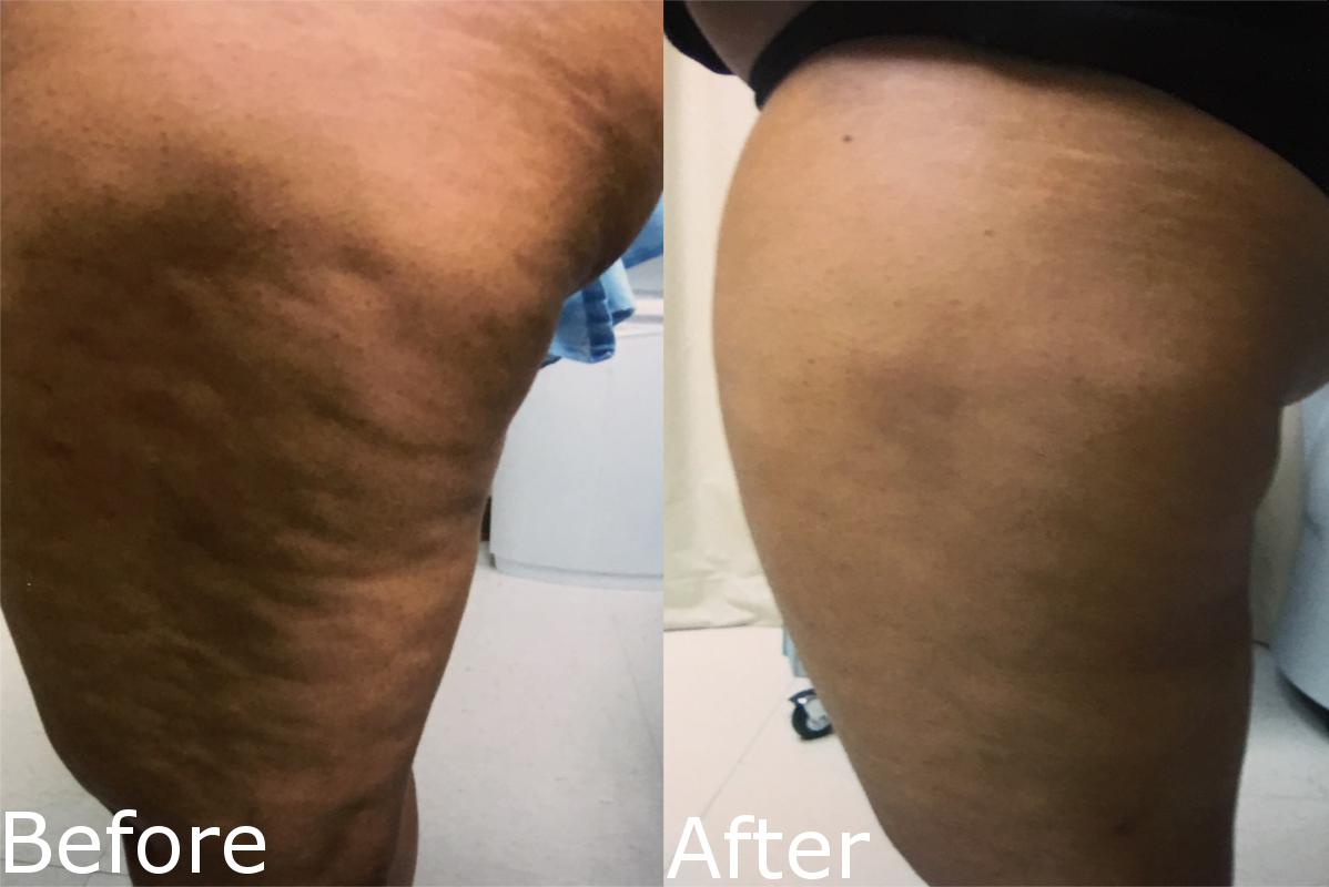 Cellulite Treatment Cellulaze Laser Procedure