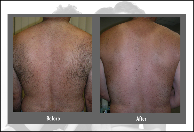 mens chest hair removal