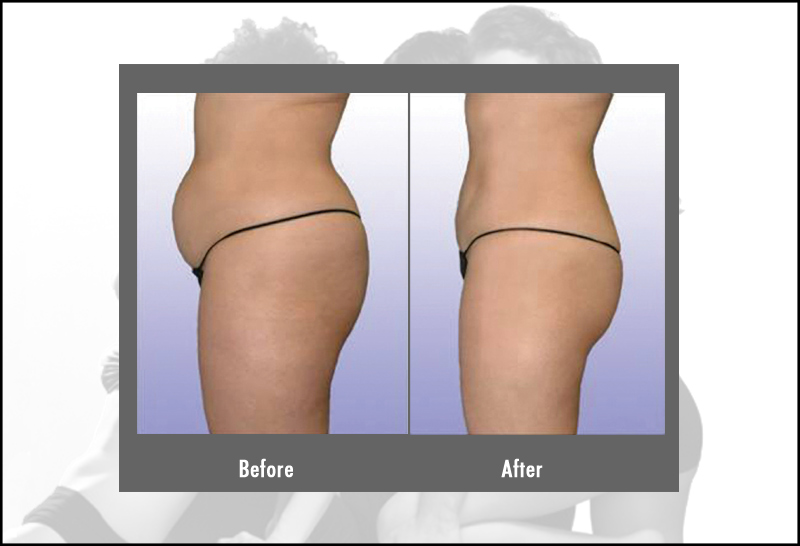 Smartlipo Laser Liposuction Treatment Hartford