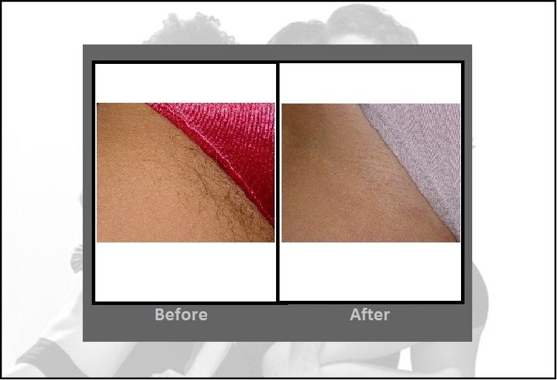 Laser Hair Removal | Cost, Before & After, FAQ | Hartford CT