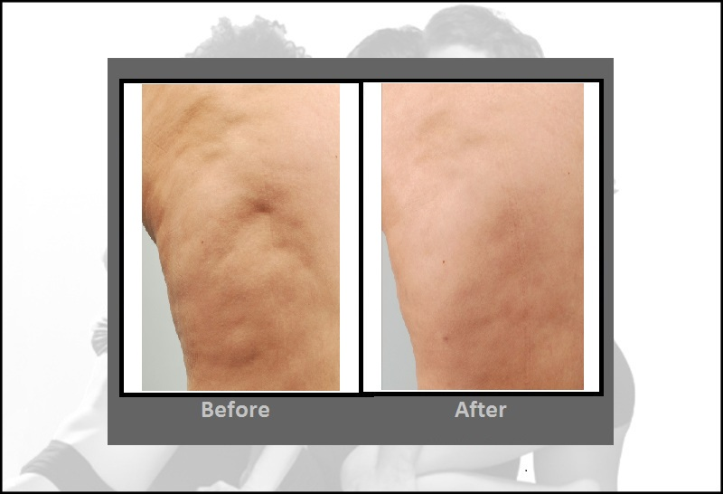 Cellulite Treatment Cellulaze Laser Procedure Hartford Ct