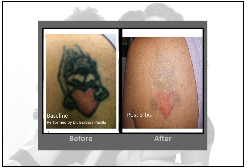 Laser Tattoo Removal | Enlighten™| Latest and Most Effective ...