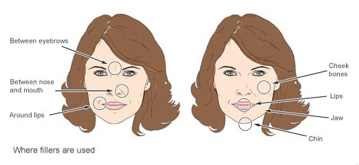 Which facial filler is best