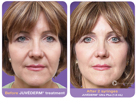 Juvederm Xc Treatment Faq Cost Before Amp After