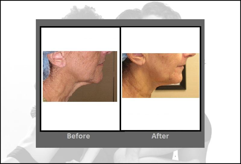 Titan Skin Tightening Procedure Hartford Cttitan Skin